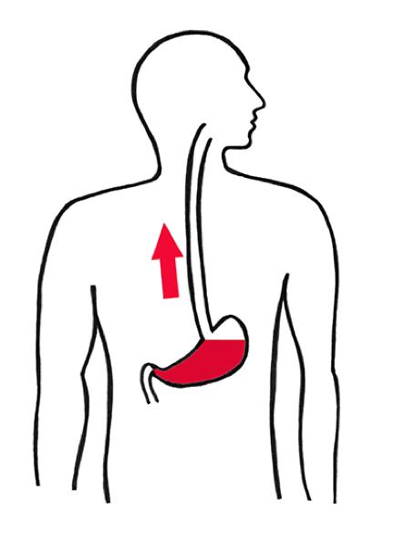 Suspicion de reflux gastro-oesophagien : conduite à tenir